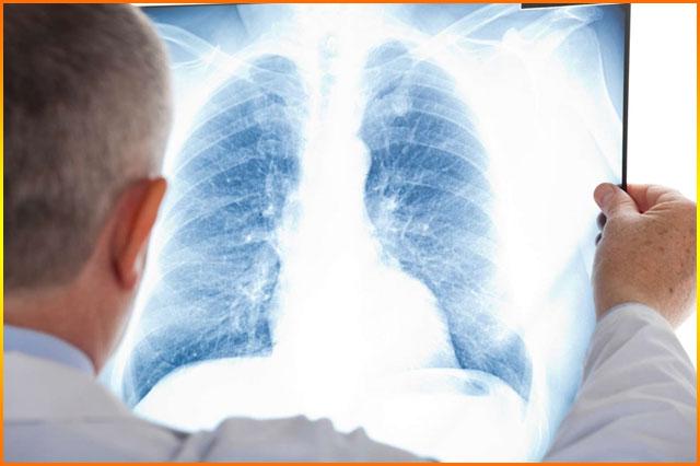 Akciğer Grafisi Nedir